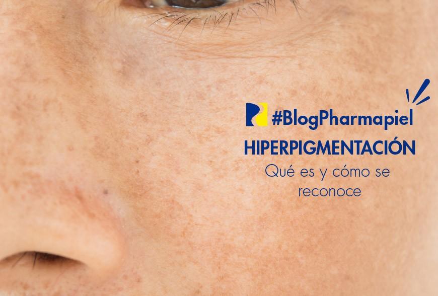 Hiperpigmentación: qué es y cómo se reconoce