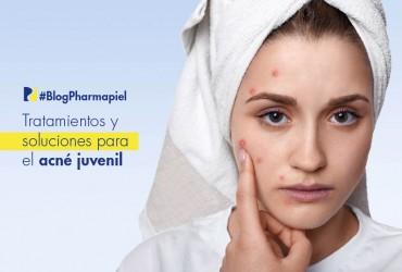 Tratamientos y soluciones para el acné juvenil